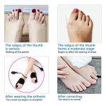 Attelle orthopédique gonflable réglable d'orteil de redresseur d'oignon de gros redresseur d'orteil pour le pied de marteau de soulagement de la douleur d'hallux Valgus régalent et empêchent,Black de la marque PXQ image 3 produit